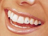 Как обрести сияющую улыбку за один день?.