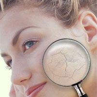 Особенности ухода за кожей в весенний период